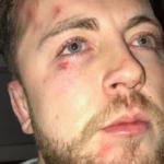 Ackermann 'victim' speaks out